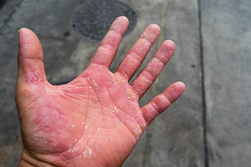 Glove use can cause contact dermatitis in some people